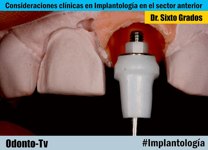 implantologia-sector-anterior