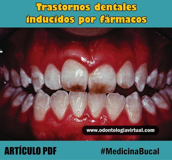 trastornos-dentales-farmacologico