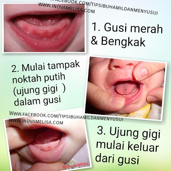 Tahap dan Tampilan Gusi Bayi Tumbuh Gigi