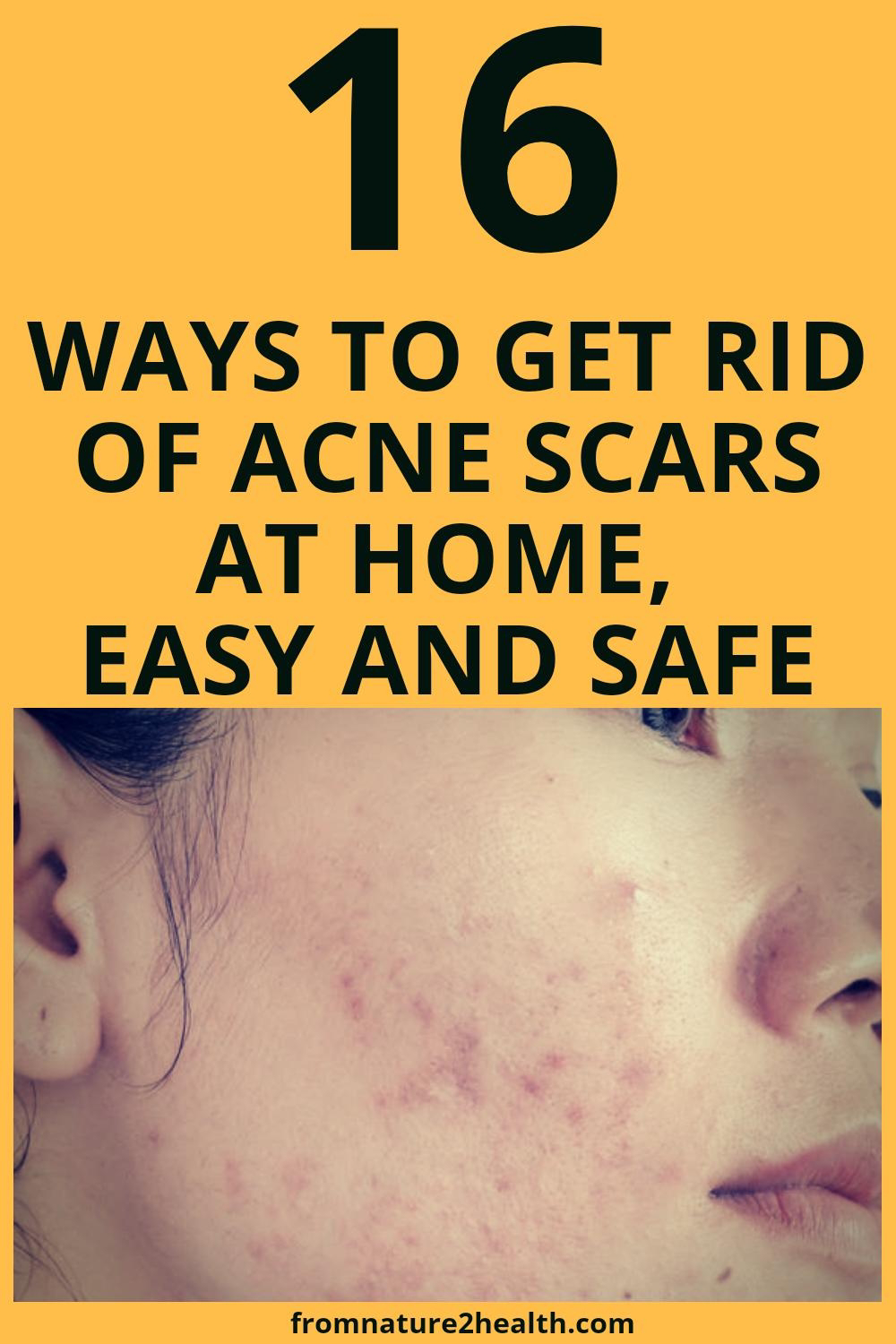 16 Ways to Get Rid of Acne Scars at Home, Easy and Safe