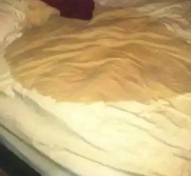 Beddings soaked with Urine