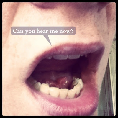 A big mouth asks, timidly: Can you hear me now?