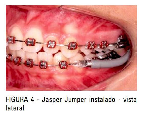 Jasper-Jumper-ortodontia