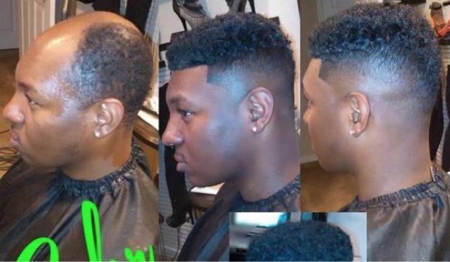 Men weaves to get rid of baldness lose fat men weaves to get rid of baldness pmusecretfo Gallery