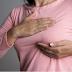 Saúde  Tratamento pode fazer câncer de mama regredir 6 vezes mais rápido