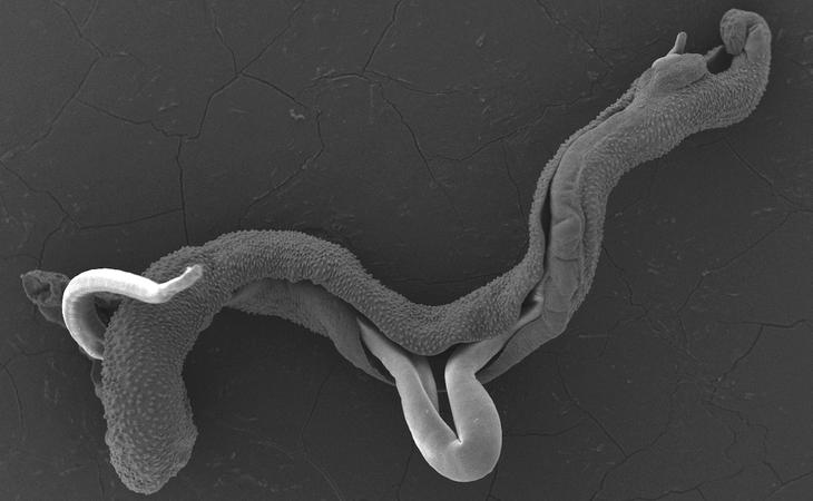 Schistosoma mansoni