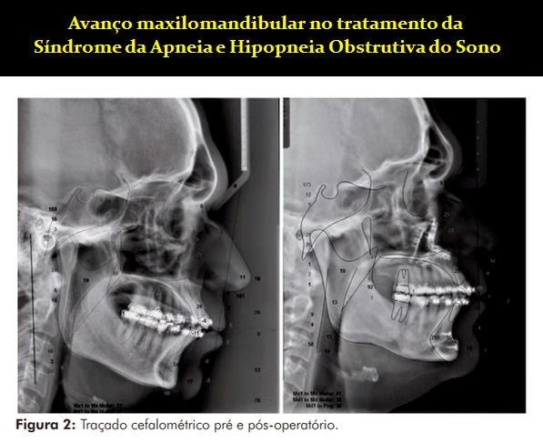 Sindrome-Apneia