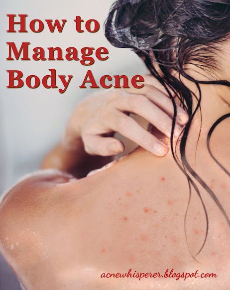 Here are 8 ways to win the battle with your body acne. Some tips may surprise you!