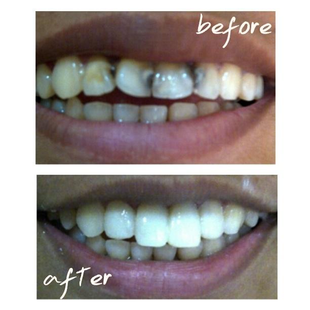 apa itu veneer gigi ancora store u2022 rh ancora store apakah itu veneer gigi apa itu veneering gigi