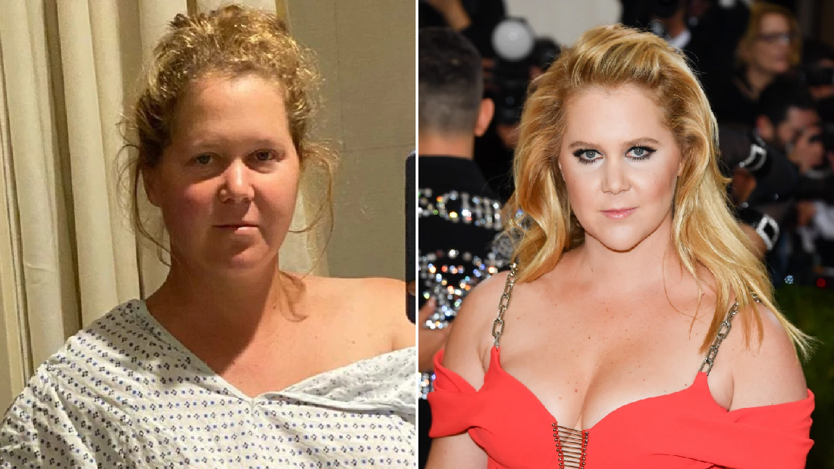 Actress Amy Schumer's uterus and appendix removed