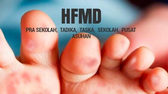 HFMD  Pra Sekolah, Tadika, Taska, Sekolah, Pusat Asuhan (2)