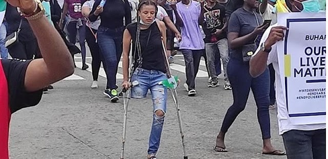 UPDATED: Youths raise N4.4m to buy prosthetic leg for #EndSARS protester without limb