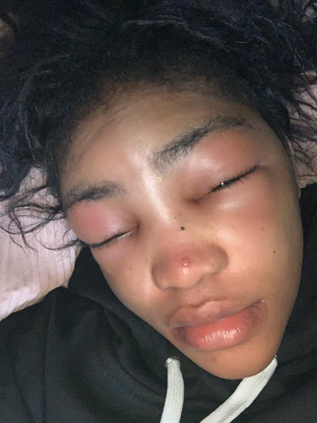 Lil Frosh Accused of Assaulting His Girlfriend [See photos]