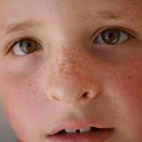 Foiled Again! June 2013 - freckles.jpg