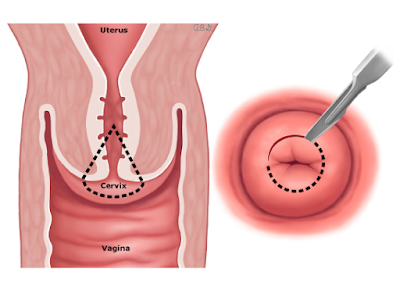 dyspareunia causes and treatment