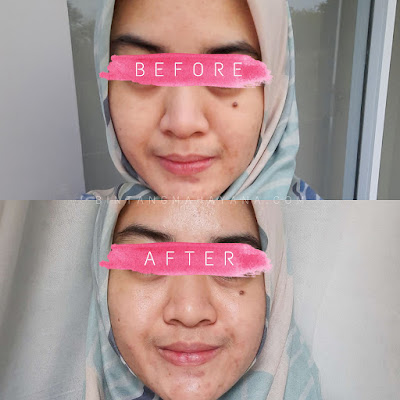 Before After daisy organic face mask