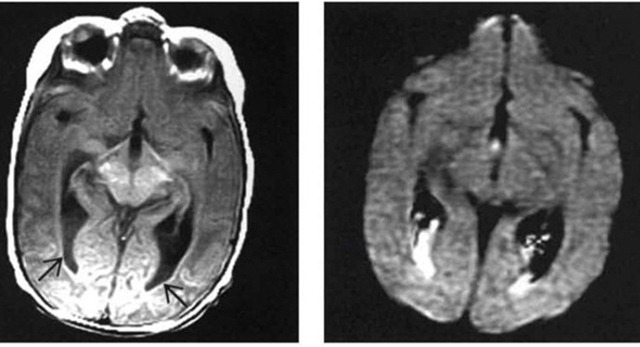 abnormal mri brain meningitis 2