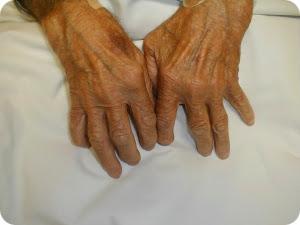 лечим артрит народными средствами