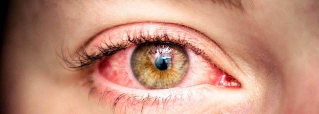 Herbal Remedy for Bloodshot Eye