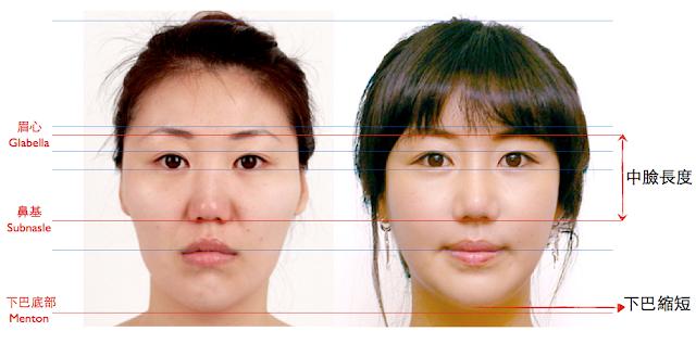 韓式微創削骨,削骨手術,削顴骨,顴骨雕塑,下顎骨雕塑,下巴