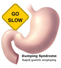 Natural Approach To Treating Dumping Syndrome
