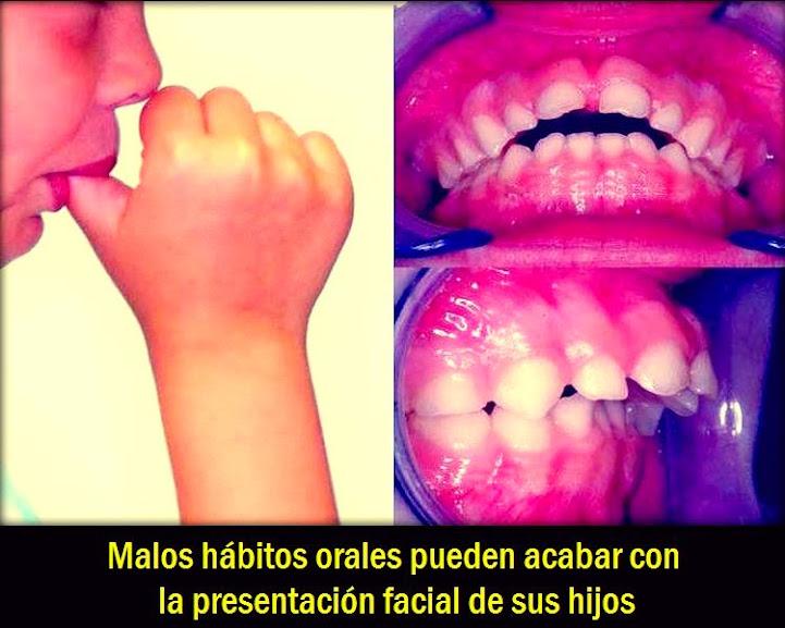 habitos-orales