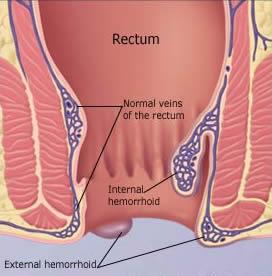 ¿Cómo se soluciona un problema del nervio ciático?