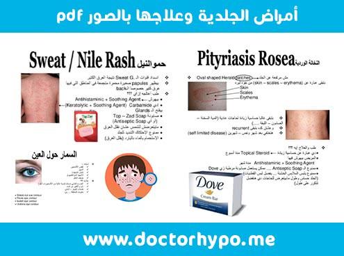 الأمراض الجلدية وعلاجها بالصور