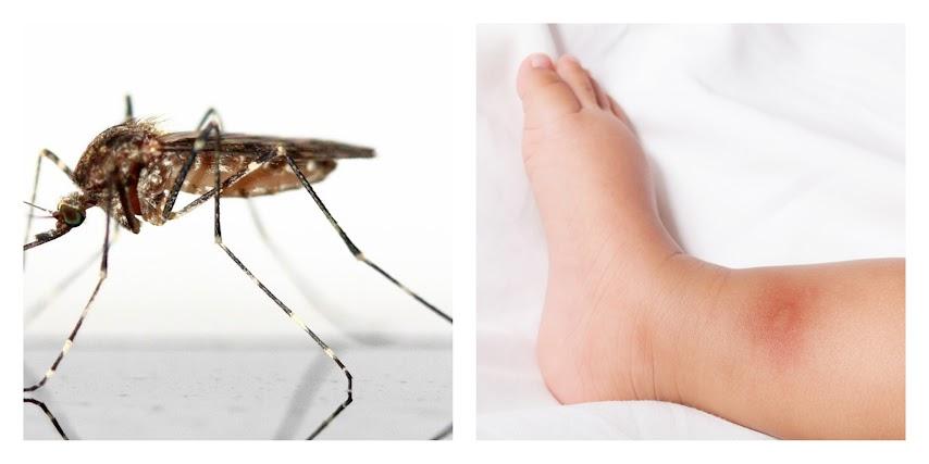 mosquitos-picaduras-qué-hacer-curar