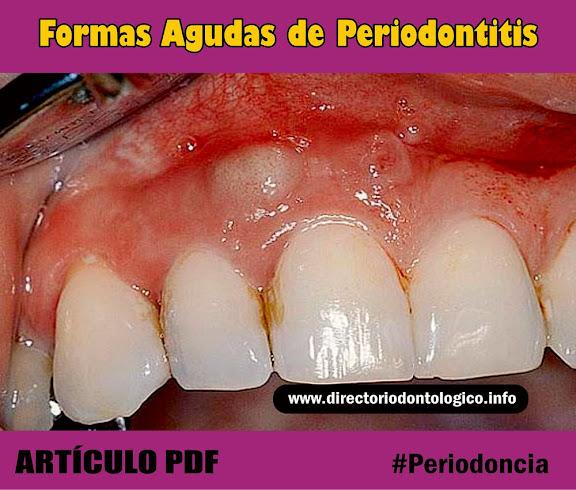 abscesos-periodontales