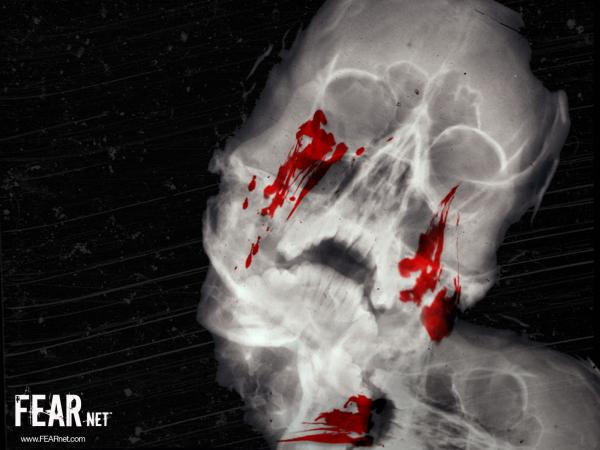 Xray Bleeding Skull Horror, Bloody