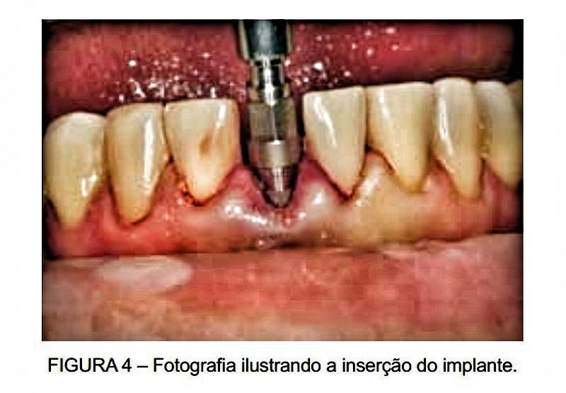 implante-imediato