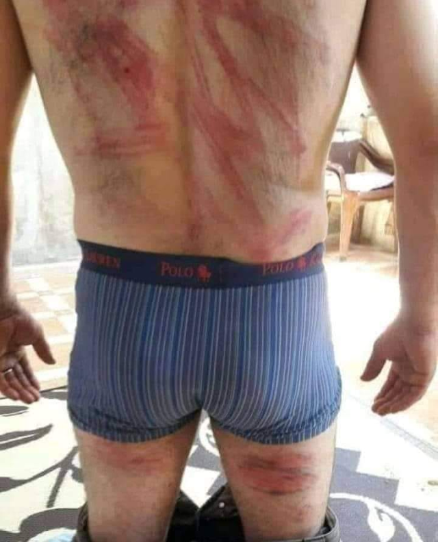 Turkish occupation and Syrian groups commit murder and torture in Afrin