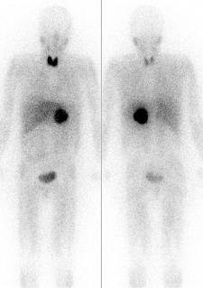feocromocitom