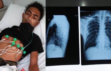 Mahasiswa NTT di Tangsel Jadi Korban Penembakan, Peluru Tembus Paru-paru