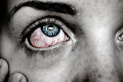 mata merah terkena belek