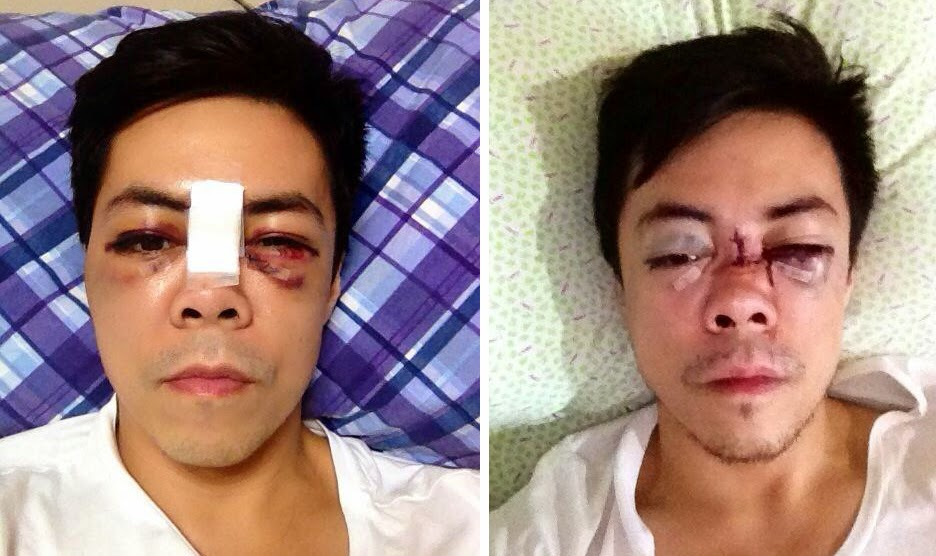 New Photos of Lance Raymundo after Gym Accident 04-02-2014-02