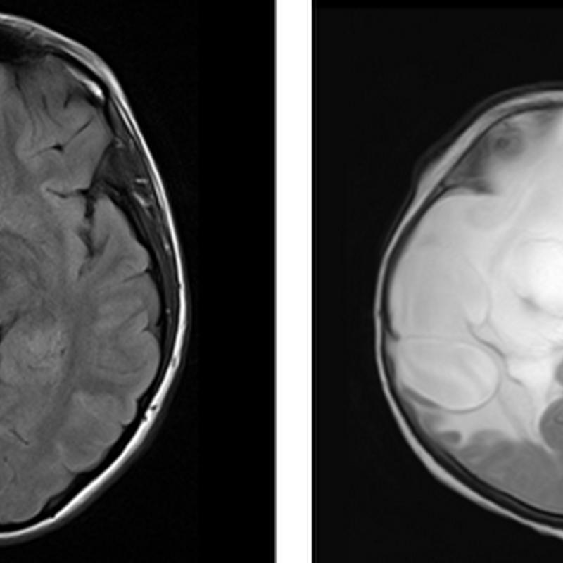 abnormal mri brain �peritumoral edema� radiology imaging