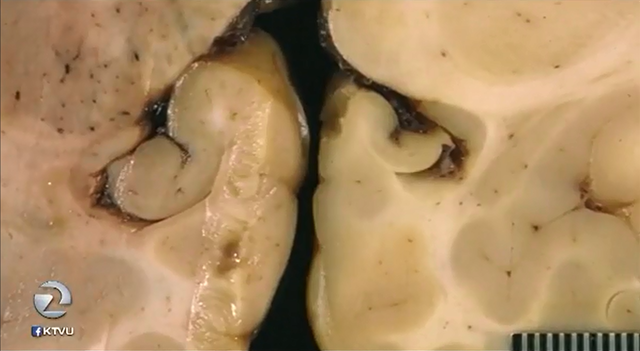 Brain damage in a California sea lion (left) compared with a healthy brain (right). The unprecedented algae bloom that has indefinitely delayed the Dungeness crab season is causing brain damage in California sea lions. Photo: Marine Mammal Center / KTVU