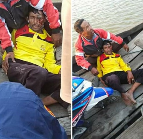 seorang pria terkapar di atas sebuah perahu dengan luka berdarah di bagian mata sebelah k Mata Tukang Ojek Ditusuk Gara-Gara Penumpang Tidak Ada Uang