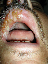 Photo: Shingles (Varicella zoster) of 2nd branch, Trigeminal Nerve - note palatal involvement