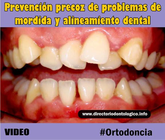 ortodoncia-prevencion