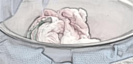 ಶಸ್ತ್ರಚಿಕಿತ್ಸೆ ಬಳಿಕ ಮಹಿಳೆಯ ಹೊಟ್ಟೆಯಲ್ಲಿ ಬಾಕಿ ಉಳಿದ ಹತ್ತಿ: ಠಾಣೆಯ ಮೆಟ್ಟಿಲೇರಿದ ಪತಿ