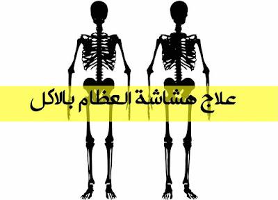 اعرف بالتفصيل كيفية علاج هشاشة العظام بالاكل