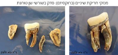 סדק שן טוחנת ברוקסיזם חריקת שיניים- ד''ר גיא וולפין