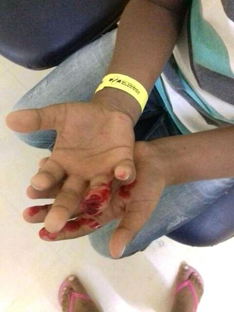 Criança perde o dedo depôs do amigo batê a porta da escola em seu dedo em dois riachos.