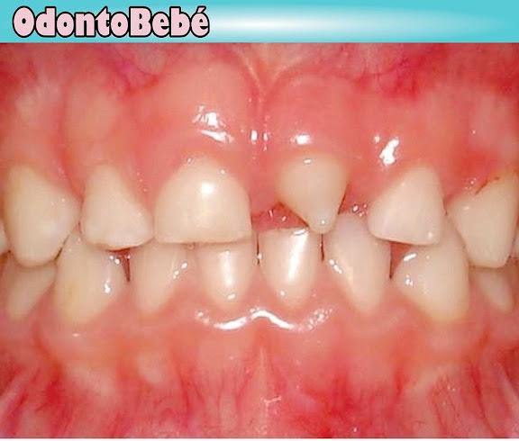anomalía-dental