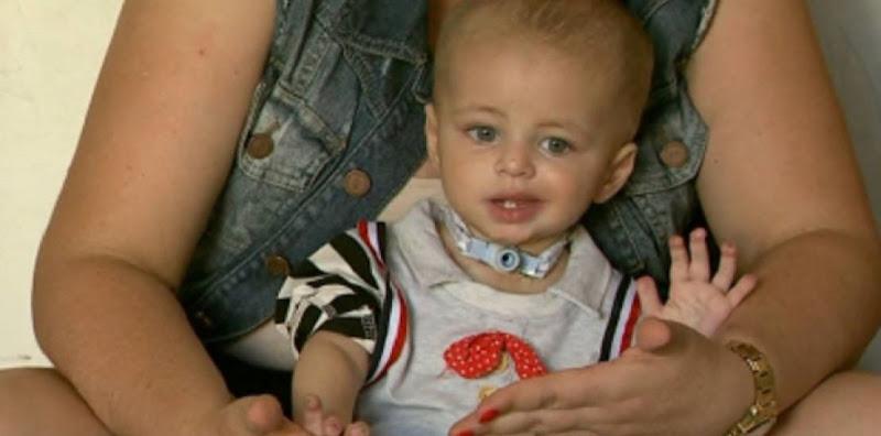 bebe-tem-pe-e-pontas-dos-dedos-amputados-por-causa-de-erro-medico