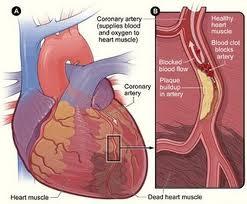 Cara Mengobati Penebalan Otot Jantung