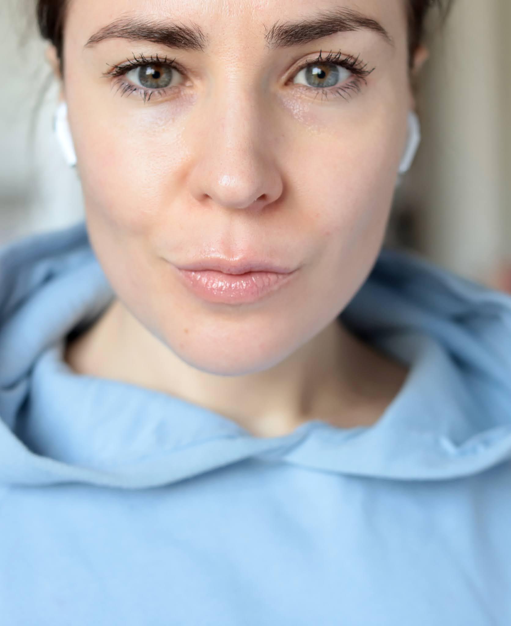 Acne Rosacée peau après traitement